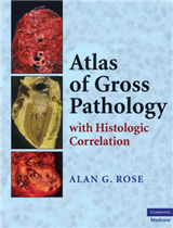 Atlas of Gross Pathology: With Histologic Correlation