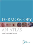 Dermoscopy: An Atlas