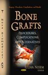 Bone Grafts: Procedures, Complications & Alternatives