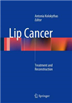 Lip Cancer: Treatment and Reconstruction