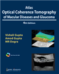 Atlas Optical Coherence Tomography of Macular Diseases and Glaucoma