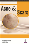 Acne & Scars