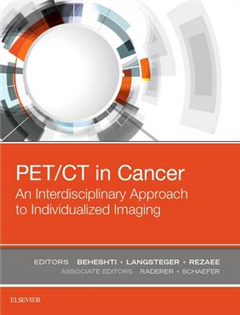 PET/CT in Cancer: An Interdisciplinary Approach to Individua