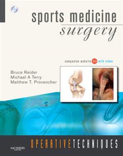Sports Medicine Surgery