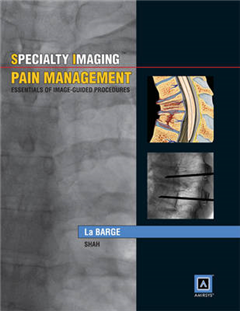 Specialty Imaging: Pain Management: Essentials of Image-guided Procedures