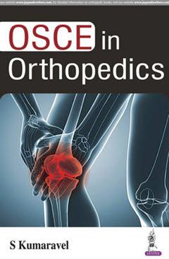 OSCE in Orthopedics